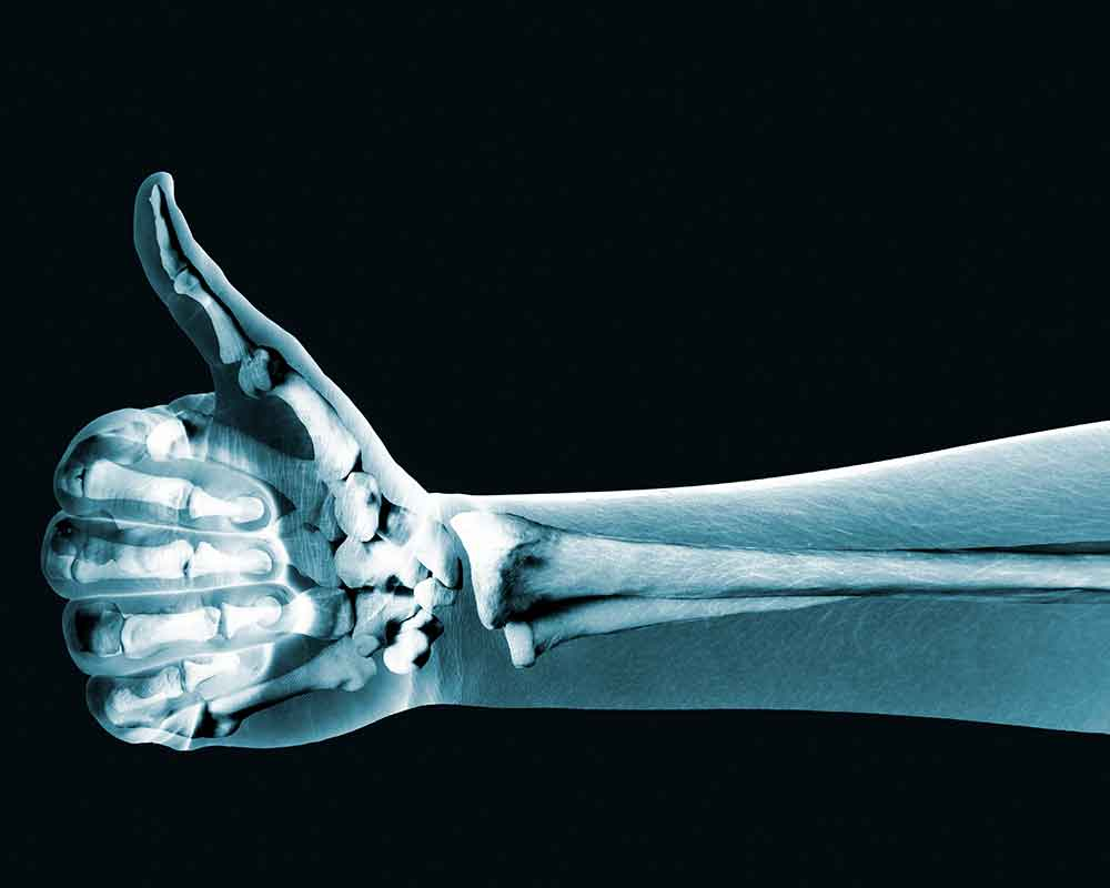 X-Rays-are-a-type-of-radiation