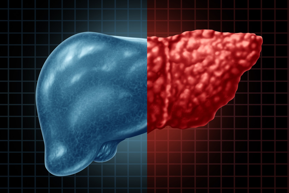fatty liver prevention National Liver Awareness Month