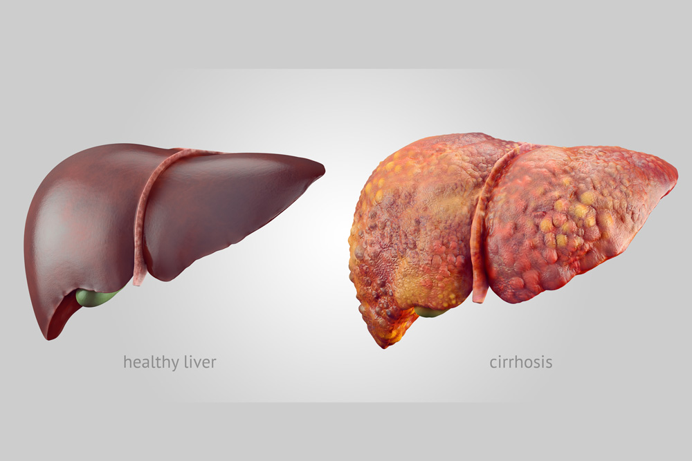 Cirrhosis National Liver Awareness Month